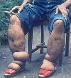 Penyakit kaki gajah (Elephantiasis)
